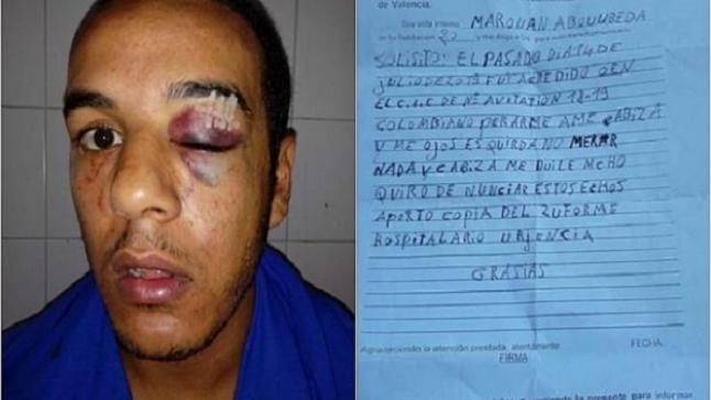 تفاصيل فضيعة حول مقتل شاب مغربي بمركز للمهاجرين بإسبانيا